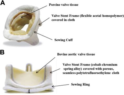 Porcine or bovine valve replacement in 3 patients with IgE